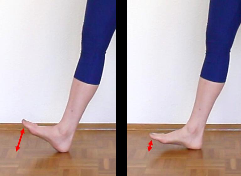Schienbeinkantensyndrom / Shin Splints Ursachen: Laufstil Fußaufsatz