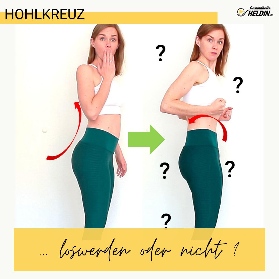 Read more about the article Hohlkreuz wegtrainieren – notwendig oder nicht