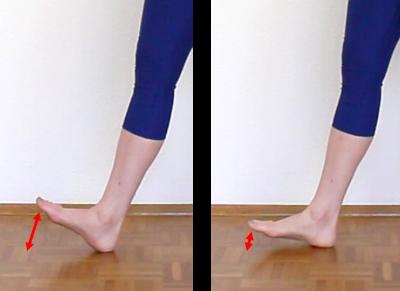 Schienbeinkantensyndrom Laufstil Fußaufsatz